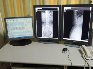 看大圖:PACS系統、診斷用螢幕(另開新視窗)